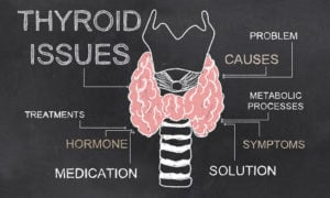 Still Having Thyroid Issues? This May Be Why - AdobeStock104411972 WEB