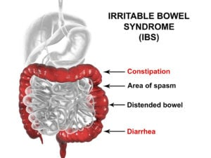 Irritable bowel syndrome IBS medical concept