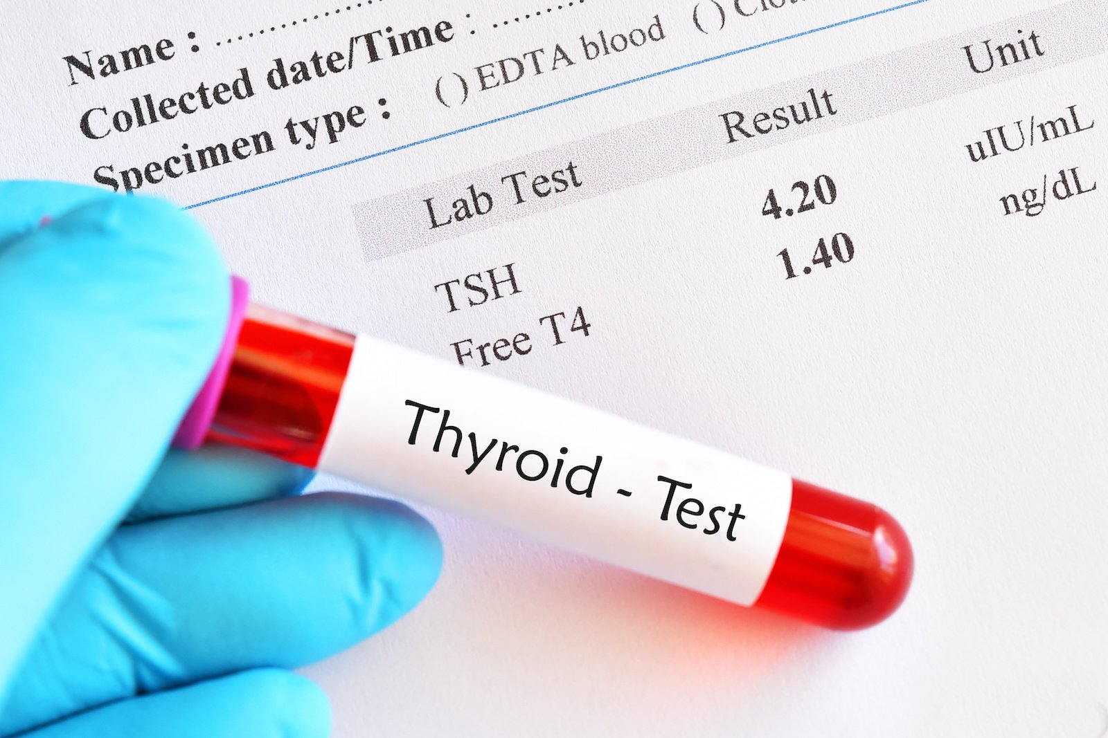 Optimal thyroid levels: A gloved hand holds a thyroid lab test sample