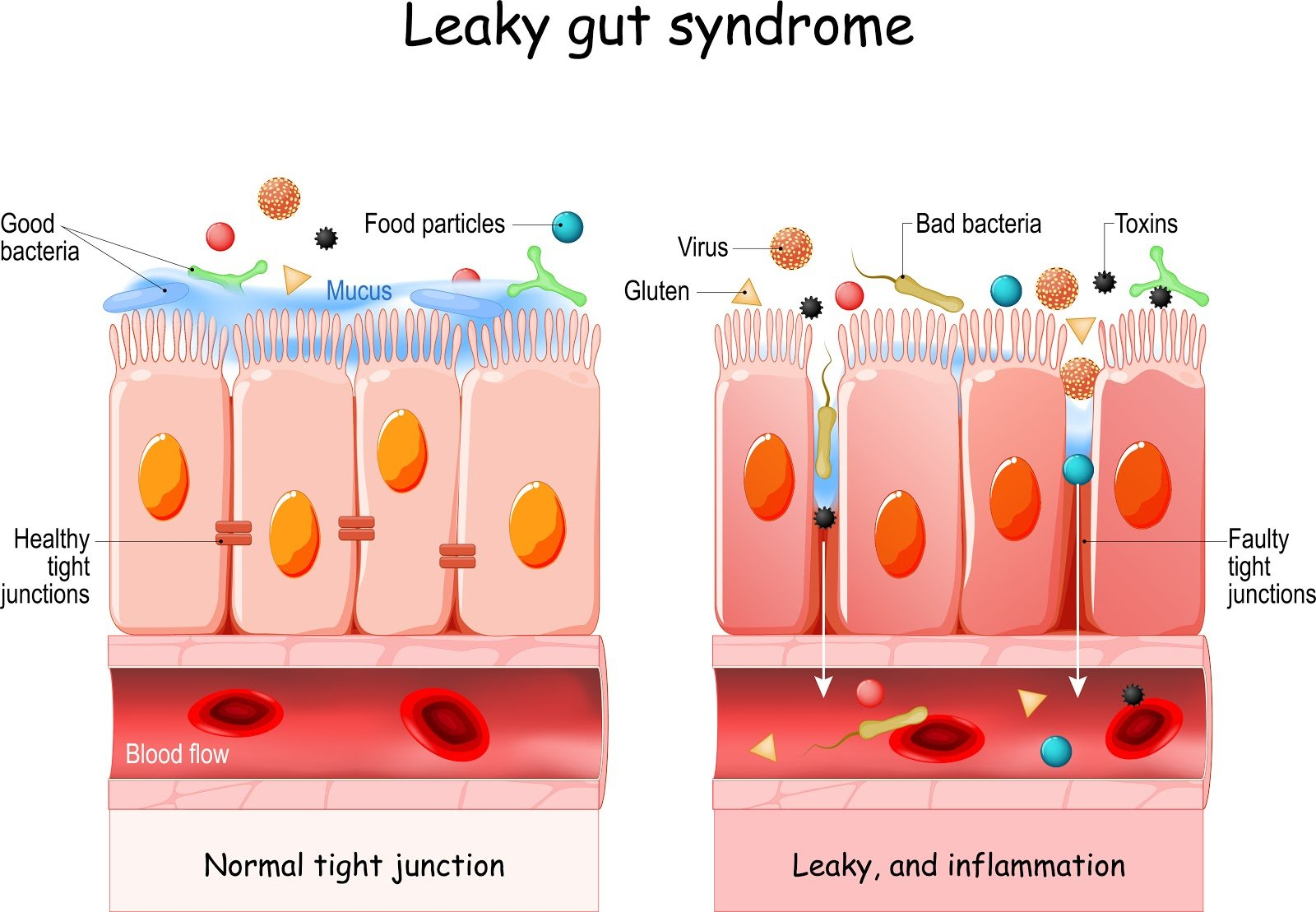 Leaky gut supplements: Leaky gut syndrome illustration