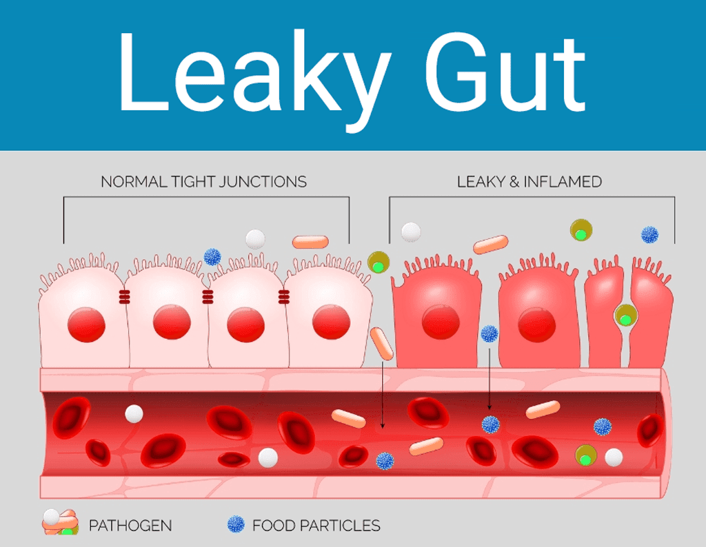 autoimmune liver disease: leaky gut illustration