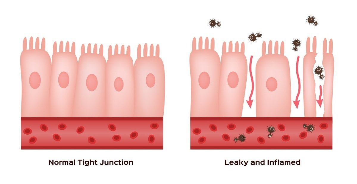 Illustration of normal and damaged small intestine lining
