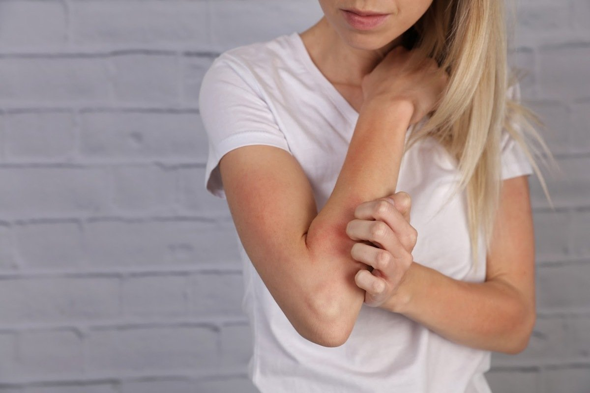 foods that cause eczema: Woman scratching her arm