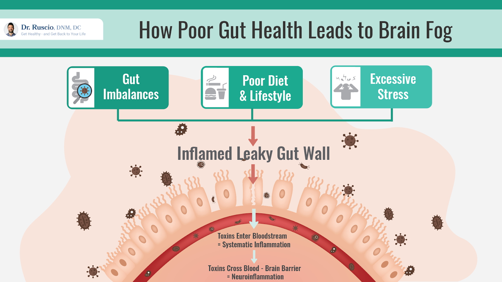 Diagram showing how poor gut health leads to brain fog