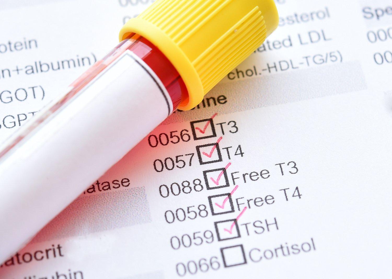 Thyroid panel: Blood sample vial on top of a thyroid hormone checklist