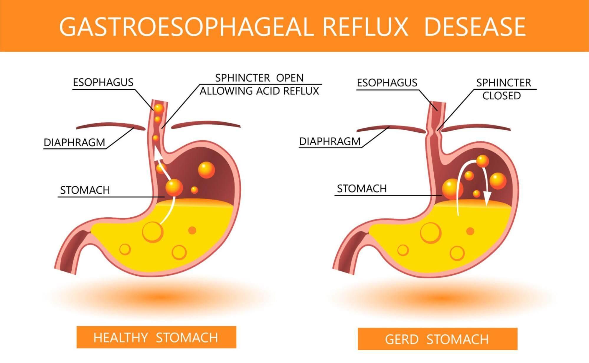 LPR symptoms: Healthy stomach vs. GERD stomach comparison chart