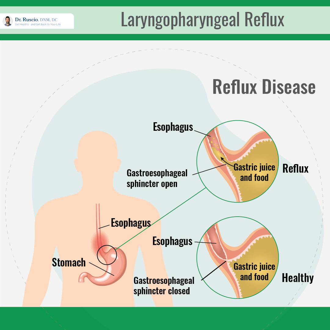 laryngopharyngeal reflux: Infograph showing reflux disease