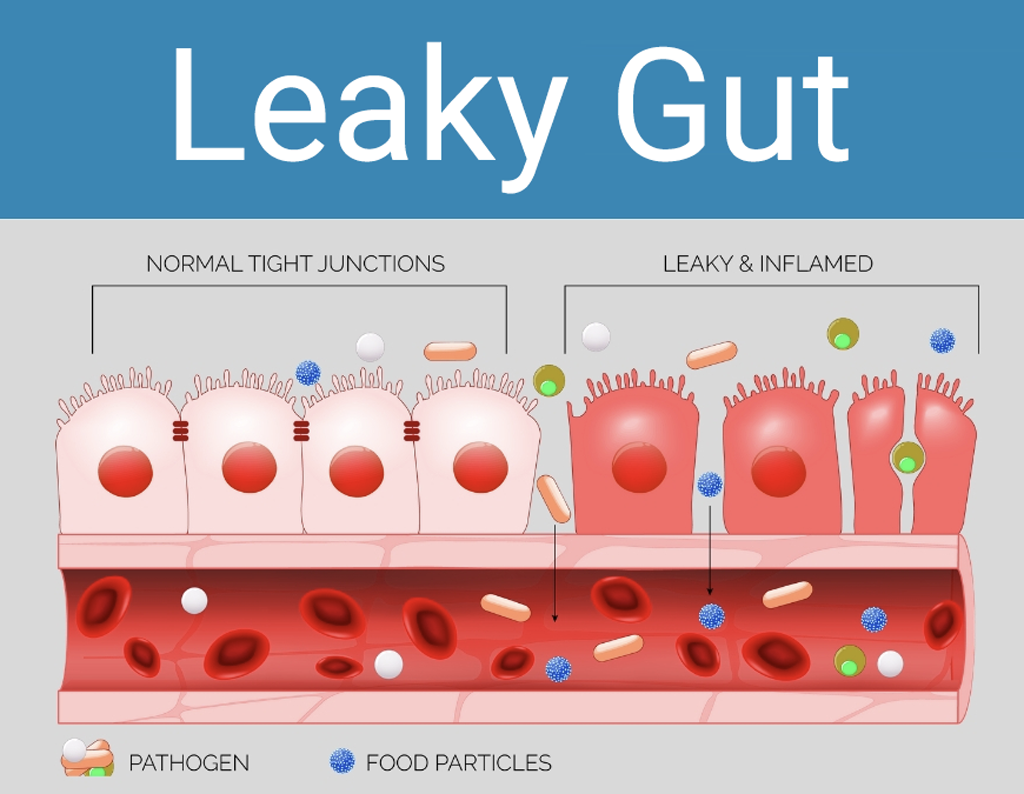 ulcerative colitis vs Crohns: Illustration of a normal and a leaky gut