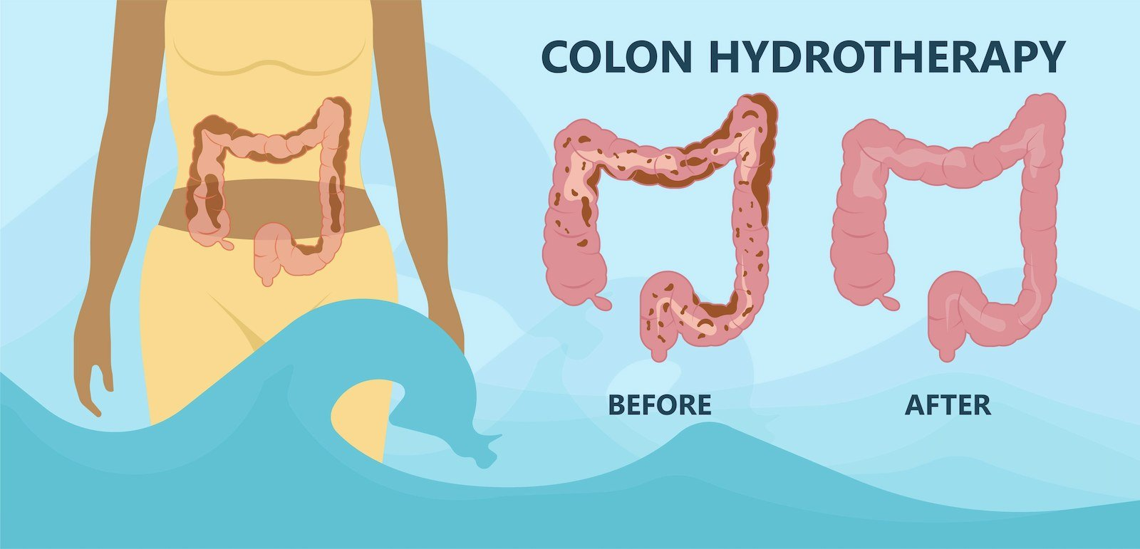 Illustration showing the intestine before and after colon hydrotherapy